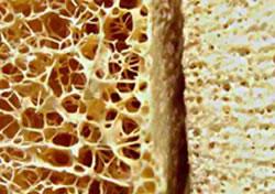 Osteoporose vermijden